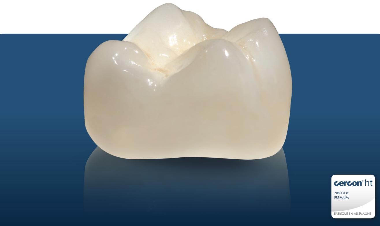 La Cercon HT est une zircone premium, matériaux de choix sélectionnée par le laboratoire Prodontec