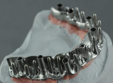 Barre sur implant GlobalID