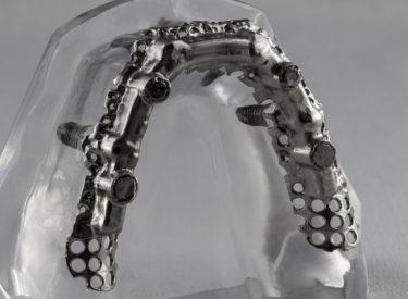 Barre sur implants