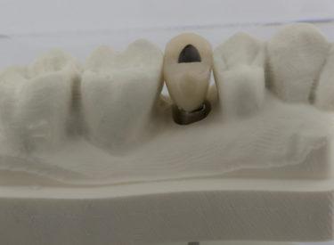 Céramo métal transvissée avec connectique Straumann Bone Level NC