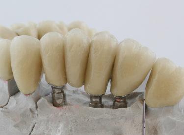 Prothèse sur implant sur faux moignons Global D